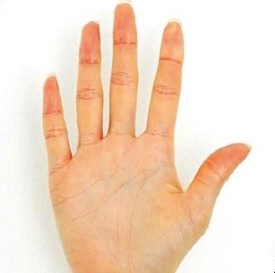 手の色が黄色い例。自分の中で今後の方向性が見つからず、過度にストレスを感じている状態。また、胆汁が出やすく、肝臓に何か問題を抱えている心配も。