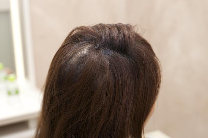 1:分け目をジグザグにし、サイドの髪を上下で7:3に分けます。