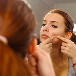 【顔だけでなくアレも洗ってる?】大人のニキビを作る、ダメ習慣3つ|ちょこっと美容マメ知識 #2