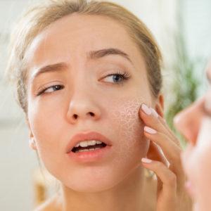 花粉で肌荒れ何とかしたい!肌の専門家直伝「肌荒れを防ぐ」ヒント