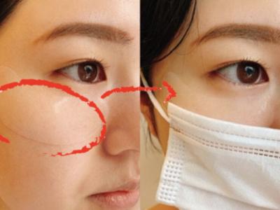 """マスクの下でも付けられる""""パック""""発見! 美容クリニック開発で効果も期待できる"""
