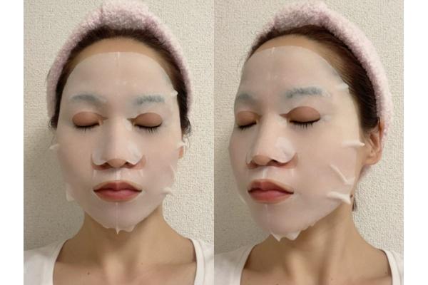 『美粧 AKARI THE STEM CELL FACE MASK』使用写真